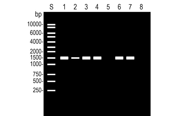 PCR法の結果の見方を解説します